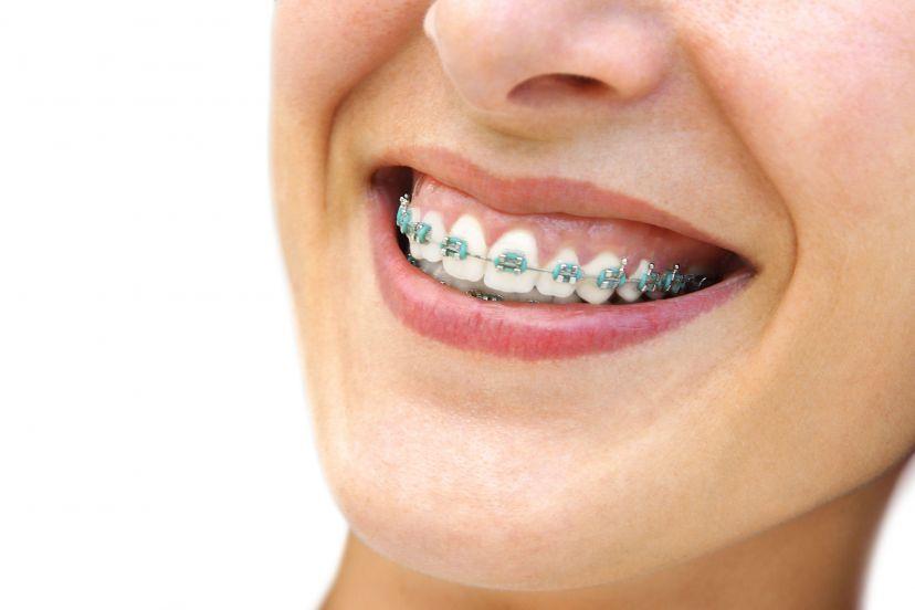 Apart na zęby – co powinniśmy wiedzieć?