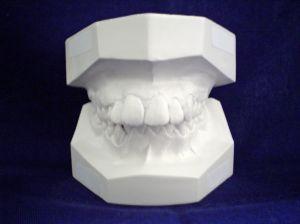 Kiedy zastanowić się nad aparatem ortodontycznym dla dziecka