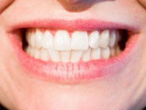 zeby-usmiech