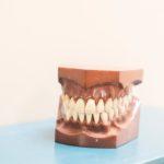 Leczenie stomatologiczne – implanty