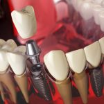 Dlaczego warto wybrać protezę na implantach?